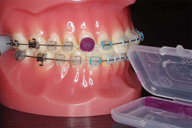 紫色のものがリリーフワックス。粘膜にあたっている装置の上に張り付け、これ以上粘膜を傷つけないようにします