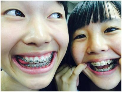矯正エキストラ - 詳細表示 - 歯列矯正系 - Yahoo!ブログ