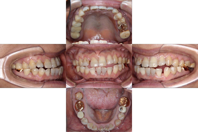 case study 01 かかりつけ歯科医と連携して治療したCさん(50代)の場合