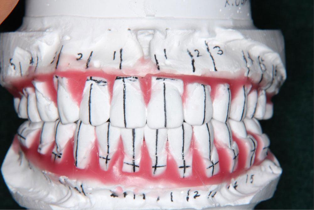 矯正歯科医が治療後の咬み合わせを想定しながら作成したシミュレーション模型