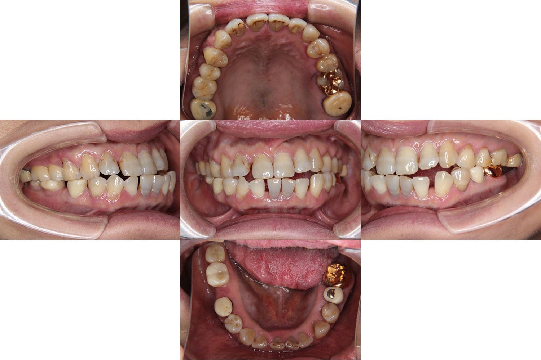 矯正歯科治療の前に、デンタルインプラントを埋入し、咬み合わせの高さを整えた Cさん(60歳0か月)