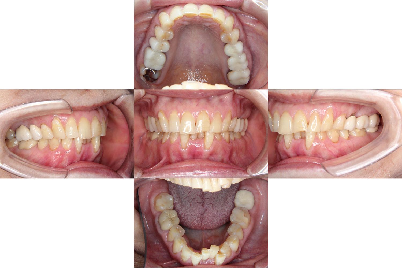 治療前のDさん(71歳10か月)。下あごの前歯部分にデコボコがある