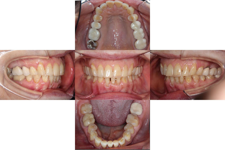 動的治療が終了したDさん(73歳4か月)。あごのスペースに歯を収めるため、治療前に1本を抜歯。歯列が整い、咬み合わせも安定した