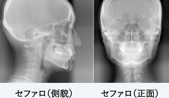 頭部X線規格写真(セファロ)検査